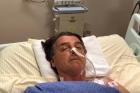 Bolsonaro precisará de cirurgia para reconstruir trânsito intestinal